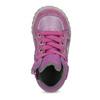Kožené dievčenské tenisky bubblegummers, ružová, 123-5601 - 17